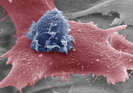 Natural Killer Cell and Tumor Cell